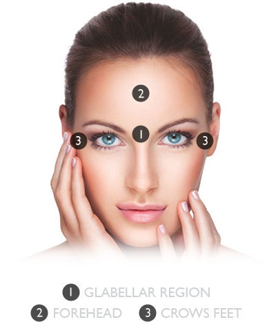 Botox 174 Anti Wrinkle Injections In Chester